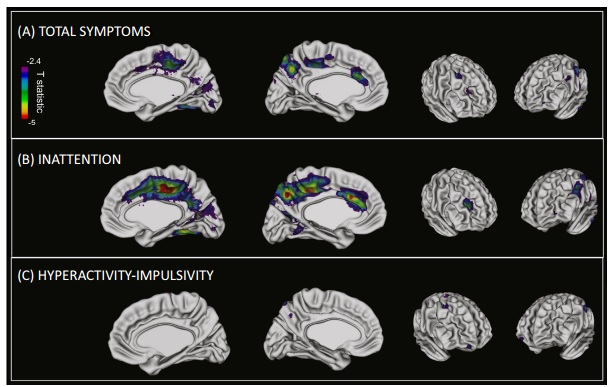 From Childhood to Adulthood: Trajectory of ADHD Brain