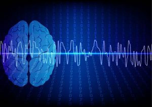 Neurofeedback Therapy